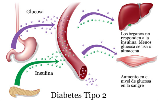 diagrama diabetes tipo ii